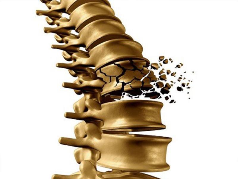 osteoporosi rimedi naturali